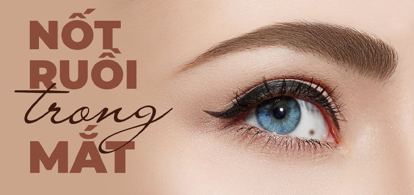Vị trí nốt ruồi trong mắt ở Nam và Nữ nói lên điều gì?